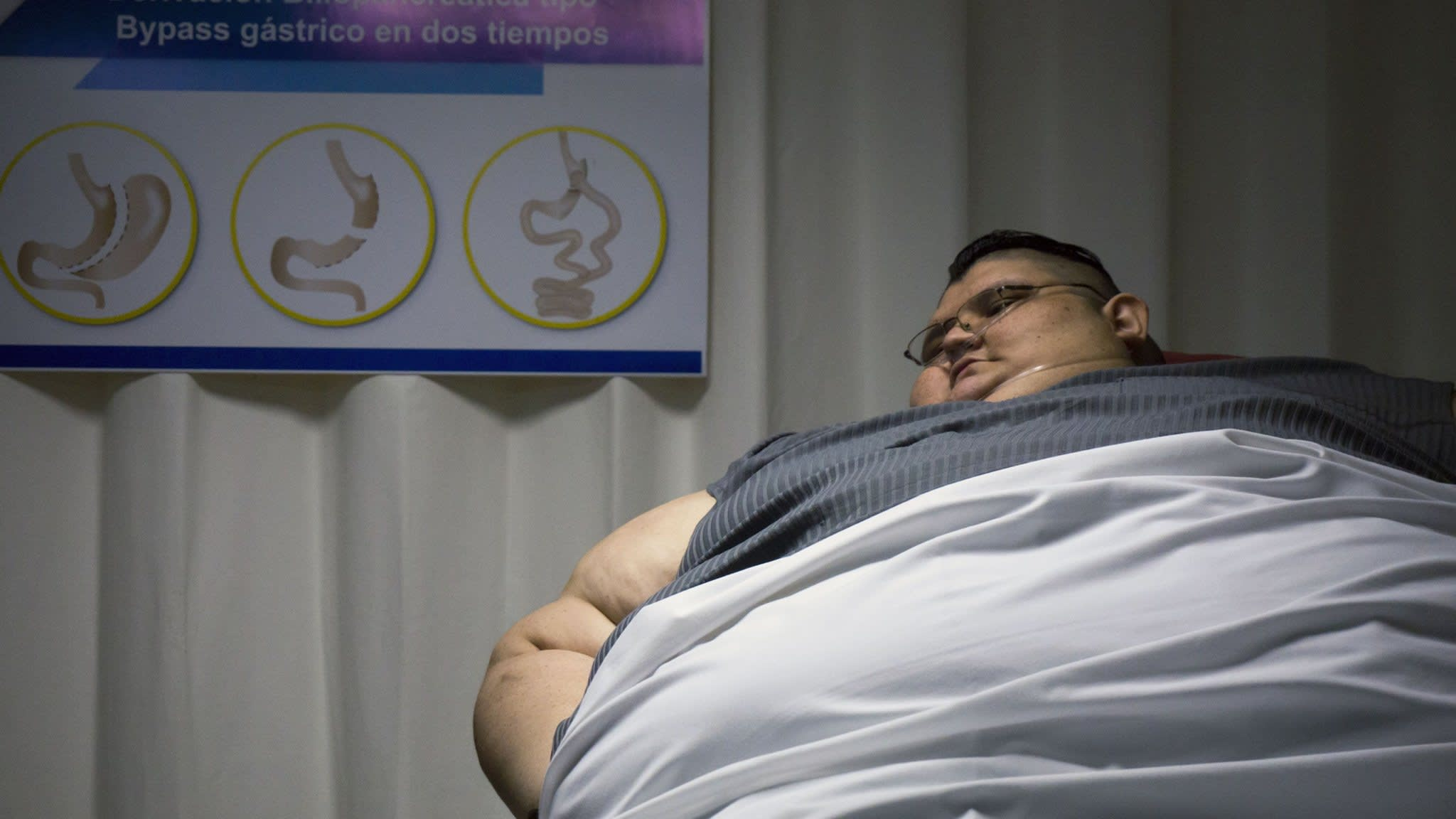 Diabetes sufferer Juan Pedro Franco weighed nearly 600kg, a world record, before dropping 170kg to undergo life-saving surgery
