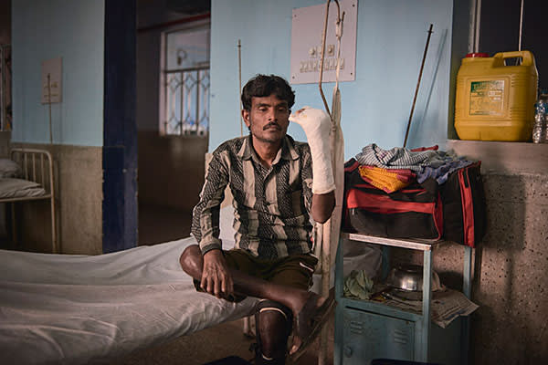 A patient being treated for leprosy in hospital in West Bengal, India