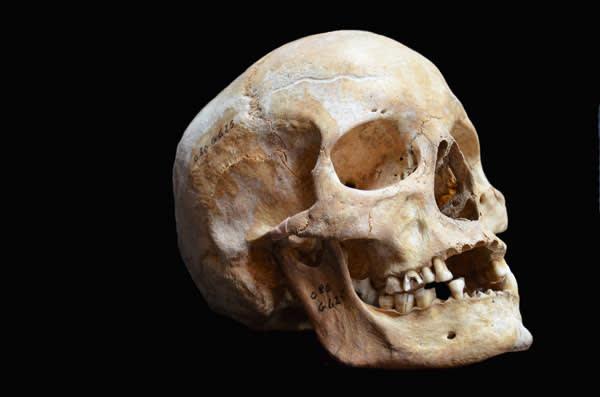 Skull of a leprosy victim from Odense, Denmark