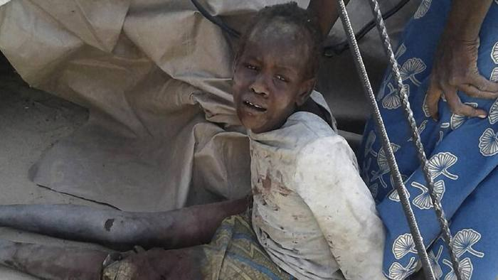 This handout image received courtesy of Doctors Without Border (MSF) on January 17, 2017, shows a wounded child after an air force jet accidentally bombarded a camp for those displaced by Boko Haram Islamists, in Rann, northeast Nigeria. At least 52 aid workers and civilians were killed on January 17, 2017, when an air force jet accidentally bombed a camp in northeast Nigeria instead of Boko Haram militants, medical charity MSF said. / AFP PHOTO / Médecins sans Frontières (MSF) / Handout / RESTRICTED TO EDITORIAL USE - MANDATORY CREDIT