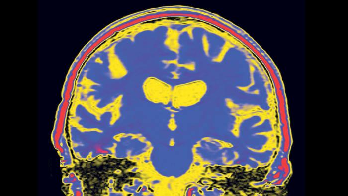 Coloured MRI scan of a coronal (vertical) section through a brain with Alzheimer's disease