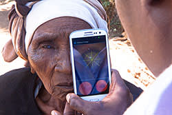 Smartphone cataract testing outside a patient's home in Kenya