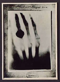 Wilhelm Röntgen's radiograph of his wife's hand taken in 1895
