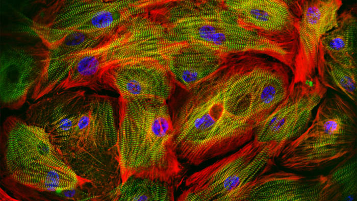 Human heart muscle cells grown from stem cells