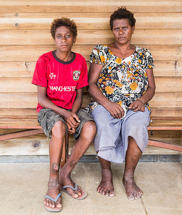 Chronic symptom: Stanis Malome and his mother. Yaws, initially untreated, has left him with a open wound on his leg