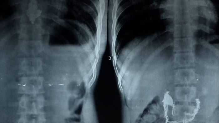 Dean of Mumbai's Lokmanya Tilak Medical College and Hospital (Sion hospital) Suleman Merchant inspects x-rays showing a pendant and necklace lodged inside the stomach of Anil Jadhav in Mumbai on May 1, 2015. Jadhav, an alleged thief who swallowed a gold necklace after snatching it from a housewife, has expelled it in his faeces after he was fed special liquids and more than 60 bananas.  Jadahav was administered four enemas by the doctors after X-ray scan of his abdomen showed the necklace worth INR 63,000 (USD 1,000)lodged in his stomach.  AFP PHOTO/ Indranil MUKHERJEE        (Photo credit should read INDRANIL MUKHERJEE/AFP/Getty Images)