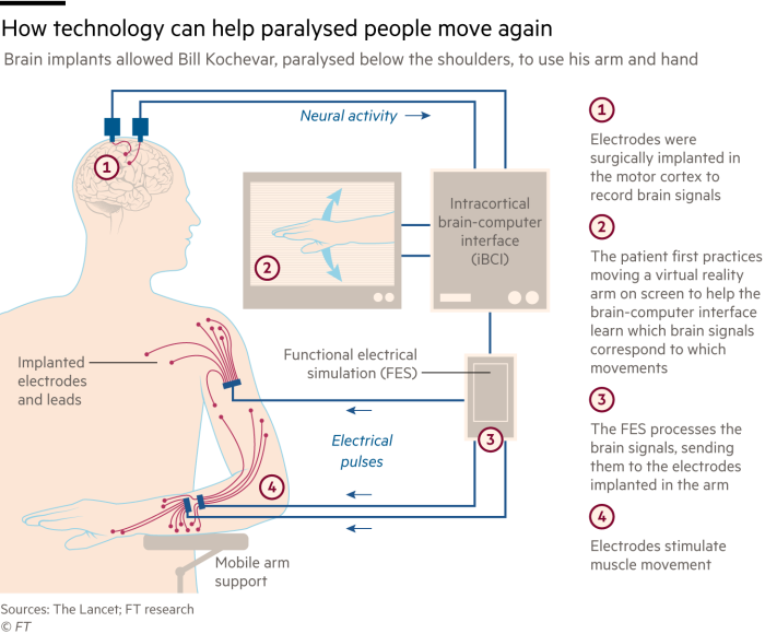 Infographic showing how technology can help paralysed people move again