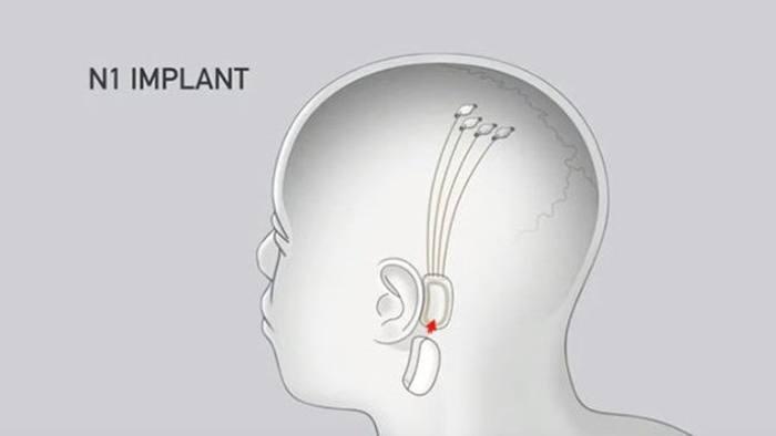Resultado de imagen para neuralink