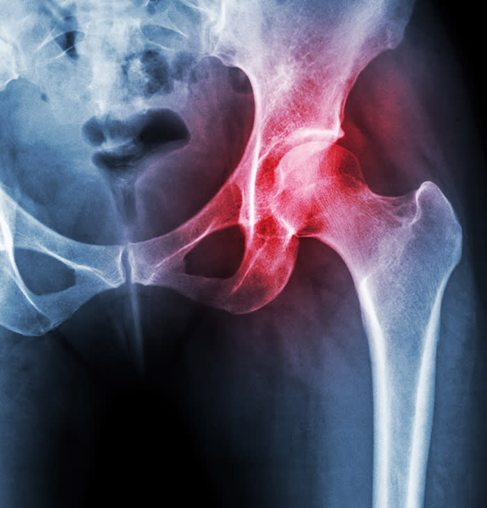 Arthritis at hip joint . Film x-ray show inflamed of hip joint and blank area at right side . Avascular necrosis concept .