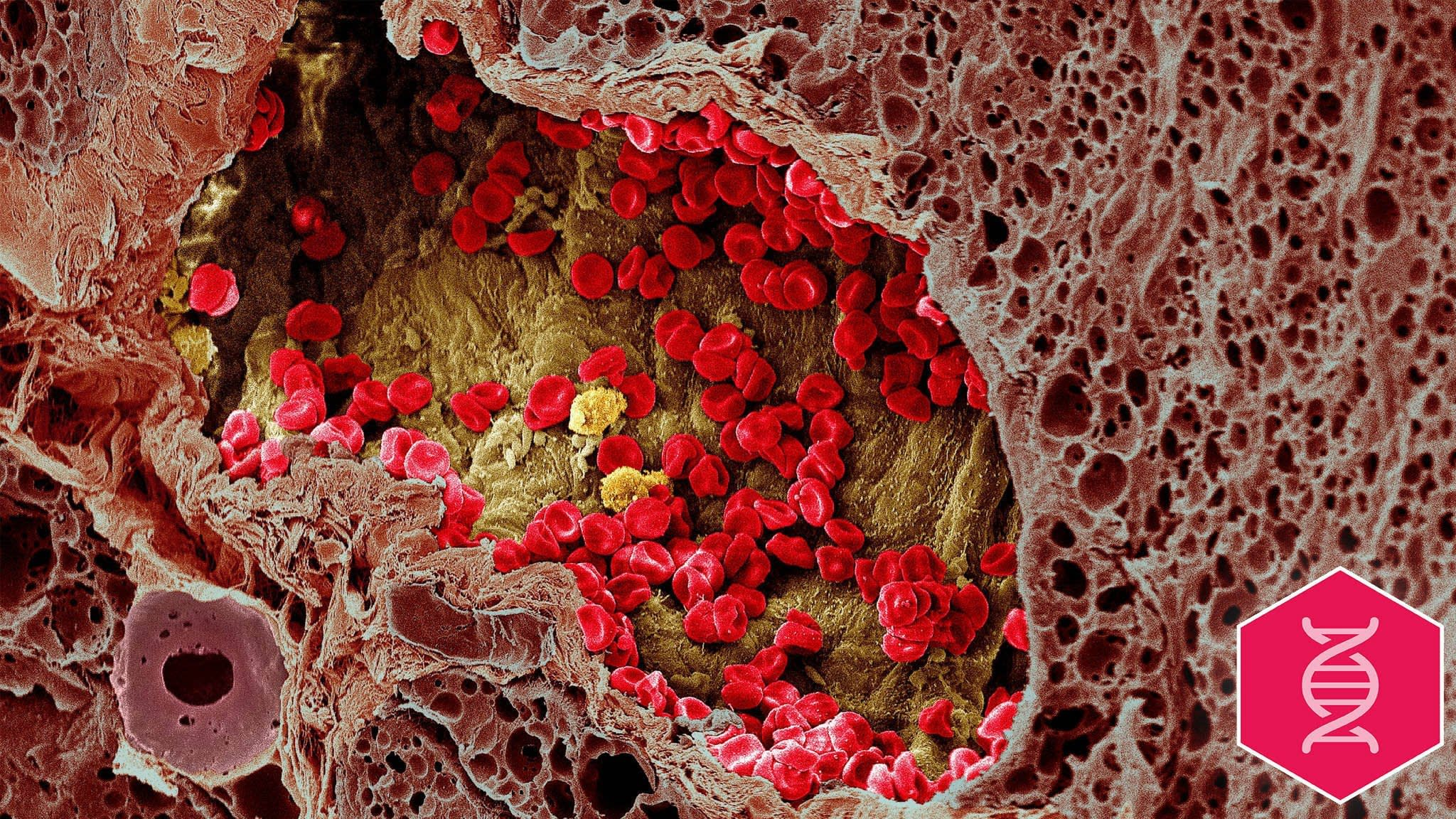 Immunotherapy: beyond melanoma and lung cancer treatment | Financial Times