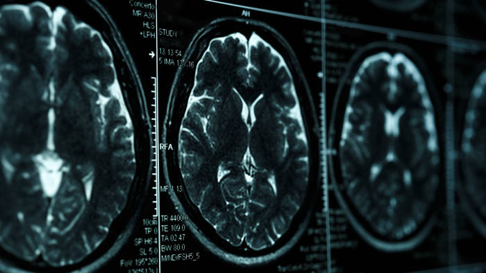 MRI or magnetic resonance image of head and brain scan. Close up view with perspective