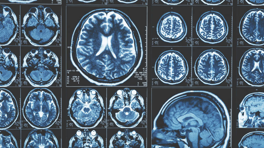 Research reveals damage that depression inflicts on brain ...