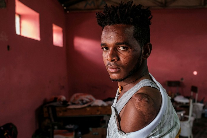 Gezae Wolderaphael, who is sheltering in a school in the Tigrayan capital Mekelle, shows his scars sustained in the attack on Mai Kadra