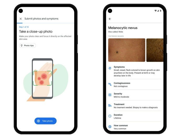 Phones with Derm Assist on screen