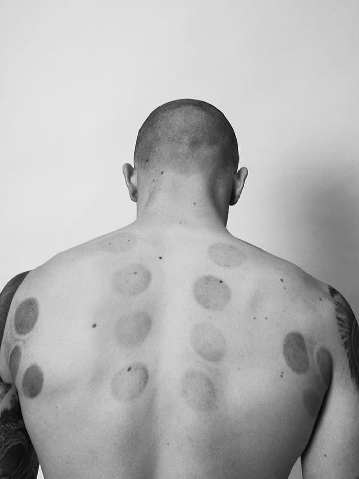 Swimmer Adam Peaty's back shows the dark, circular marks left by cupping therapy