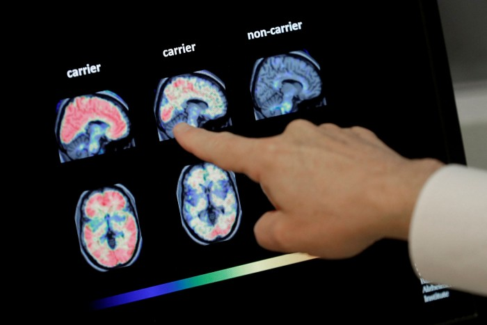 A doctor points at a brain scan. In order to be eligible for aducanumab, a patient must undergo either a PET scan or the more invasive, but typically cheaper, lumbar tap