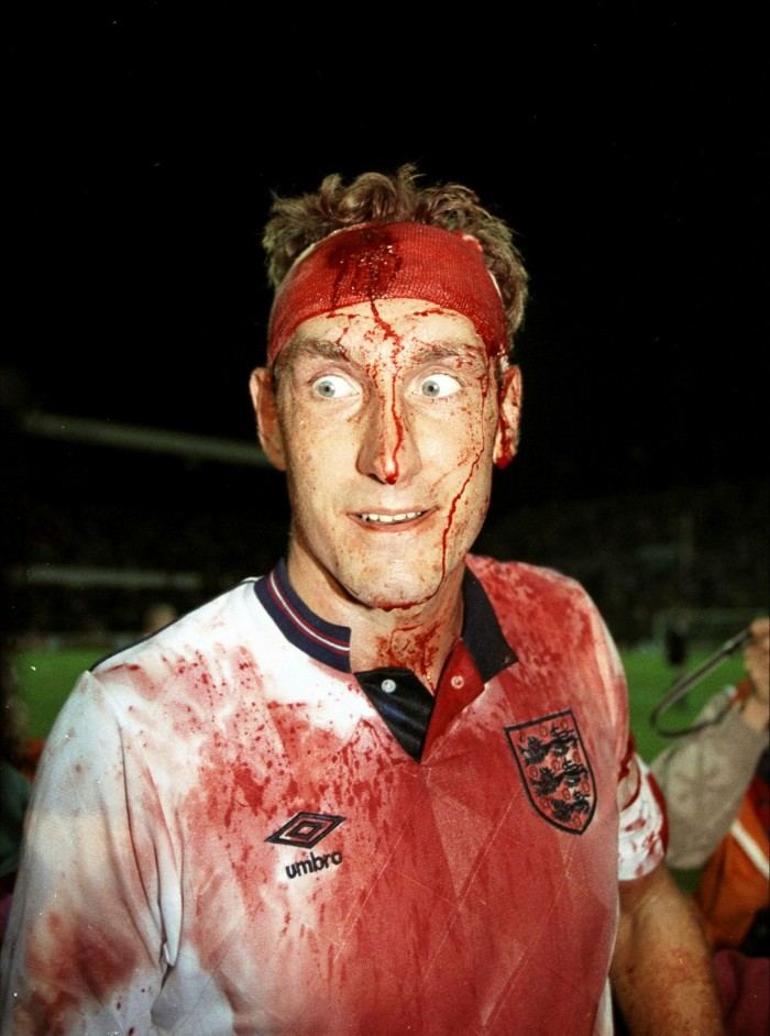 A bloodied Terry Butcher after the World Cup qualifier against Sweden, 1989