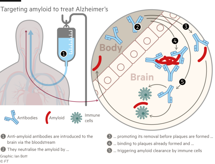 Information graphic explaining how amyloid is targeted to treat Alzheimer's