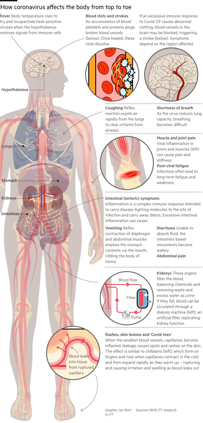 Information graphic showing some of the effects the coronavirus has on the human body