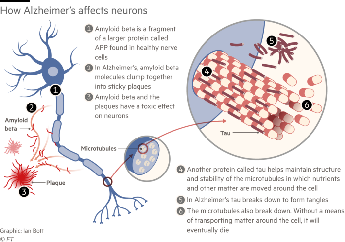 Information graphic explaining how Alzheimer's disease affects neurons