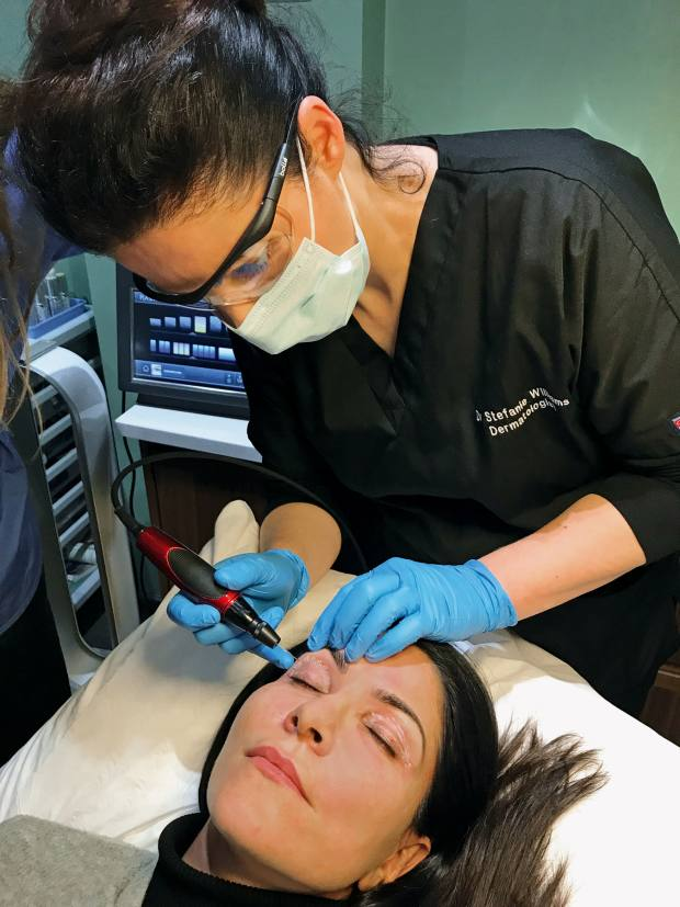 Eudelo's Dr Stefanie Williams administering her Triple Eye Lift Plasmage treatment, from £2,995, which stimulates collagen around theeye to tighten skin