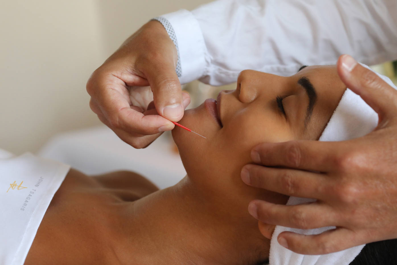 The Beauty Acupuncture with Hyaluronic Acid Skin Remodelling Facial costs £1,700, or £4,335 for three sessions