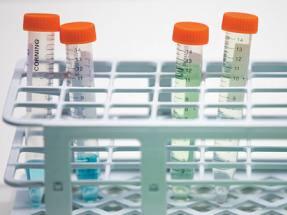 OXB still banking on Novartis drug